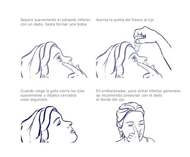 Cómo ponerte un colirio o pomada oftálmica